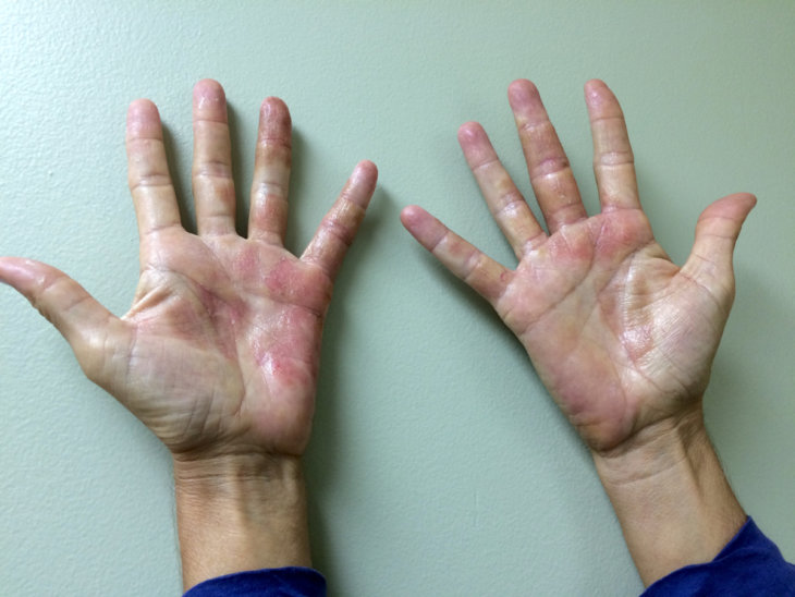 Как выглядит дерматит по всему телу