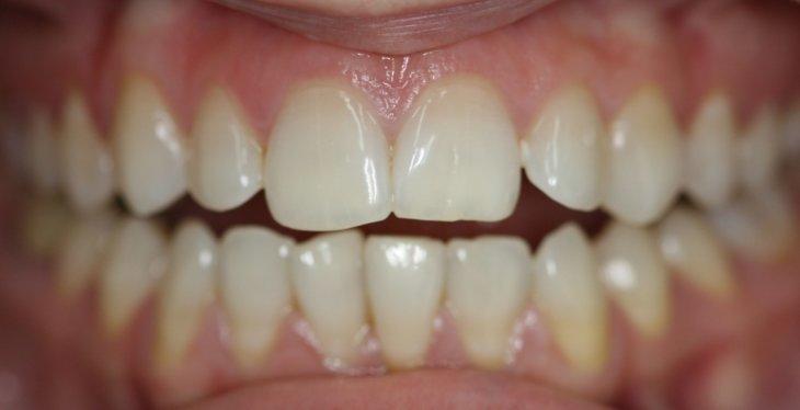 Реставрационное отбеливание зубов цена
