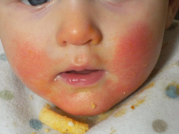 Аллергическая реакция на анаферон