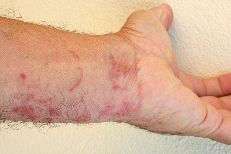 Фото кожного дерматита на спине